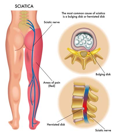 sciatica nerve pain and chiropractic