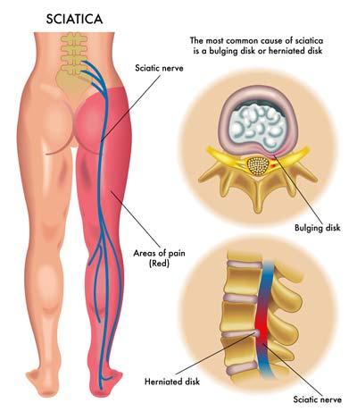 sciatica nerve pain and chiropractic